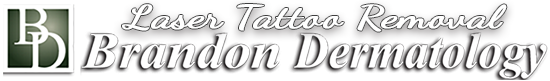 Laser Tattoo Removal by Brandon Dermatology