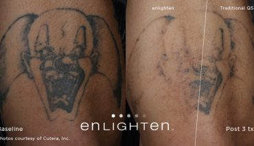 enlighten_Tattoo_Clown_Post12weeks3tx