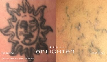 enlighten_Tattoo_Sun2